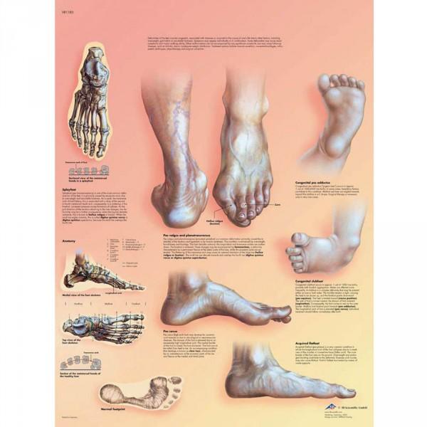 Lehrtafel: Fehlstellungen der Füße